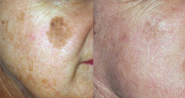 B&A Pigment Removal