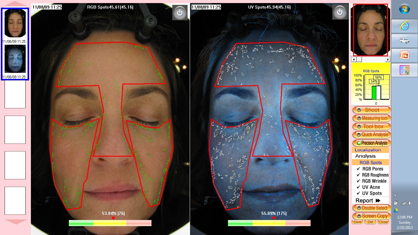 "Skin Analysis, Left Picture: ""Surface Sun Damage"" 