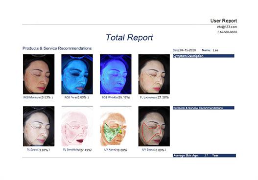 Total Report